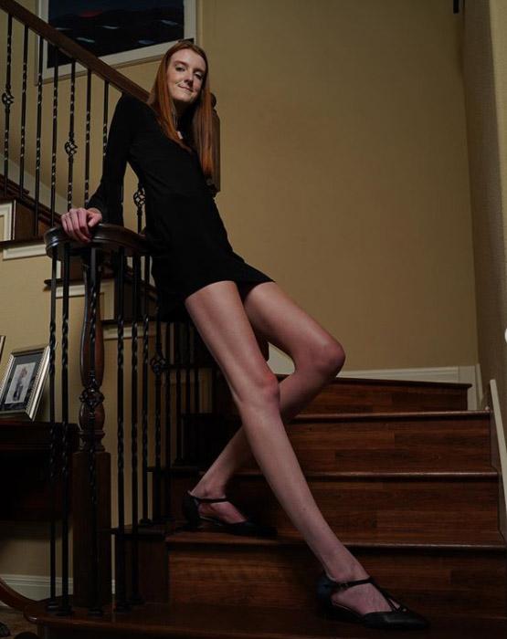 154852 17-летняя девушка является обладательницей самых длинных ног в мире