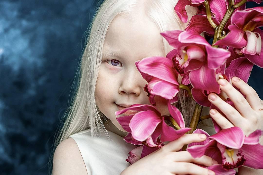 167345 Белоснежка существует: девочка-альбинос покоряет модельные агентства мира