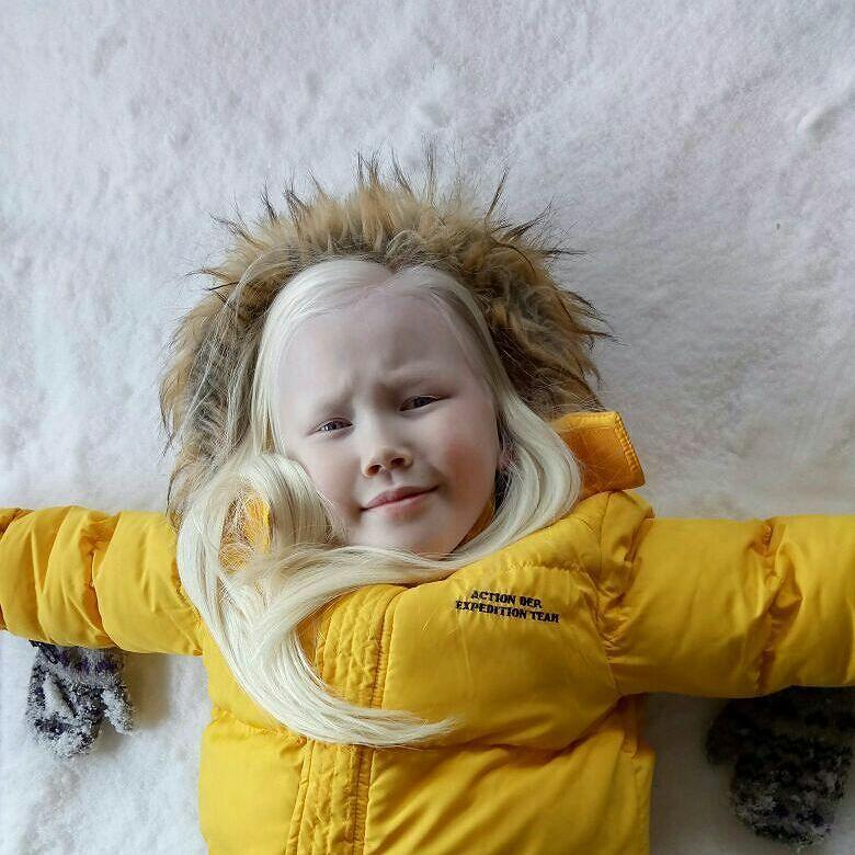 Белоснежка существует: девочка-альбинос покоряет модельные агентства мира